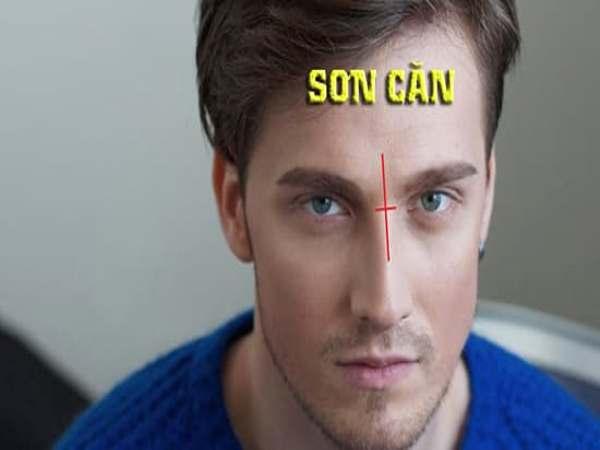 Cách nhận diện phần sơn căn trên khuân mặt